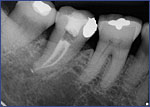 Dental Crowns 5